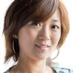 美奈子のバセドウ病って何?タトゥーやダイエットの画像を紹介!